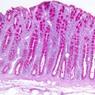 B25, Colon (Goblet Cells), 10x (PAS)